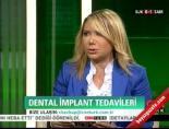 Diş Tedavisinde Kullanılan İmplant Nedir?