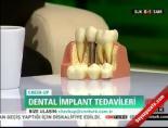 Diş Tedavisinde Uygulanan İmplat Bir Ameliyat Mıdır?