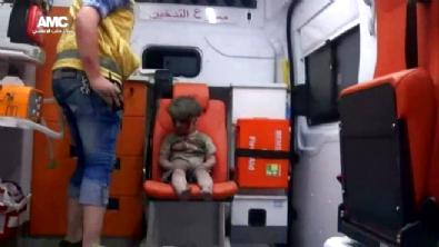 Suriye Halep'teki yaralı çocuğun bakışları dünyanın içine işledi!