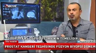 Prostat kanseri teşhisinde füzyon biyopsi dönemi