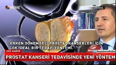 Prostat kanseri tedavisinde yeni yöntem