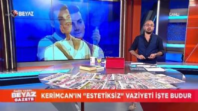 Kerimcan Durmaz - Kerimcan'ın ''Estetiksiz'' vaziyeti işte budur!