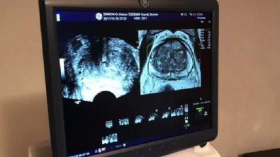 Füzyon Biyopsi ile prostat kanserinde erken tanı