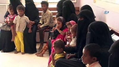- Yemen'de Savaşın Çocukları Açlıkla Mücadele Ediyor