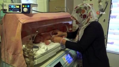 """Yeni doğan bebeğe """"doğumsal orta hat kapanma defekti"""" ameliyatı Haberi"""