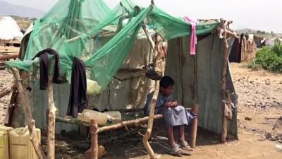 Yemenli babaların tek hayali çocuklarına yiyecek götürebilmek - SANA