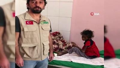 - Yemen'de 21 milyon insan açlıkla mücadele ediyor
