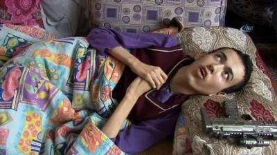 İki kardeşin hastalığına 15 yıldır teşhis konulamıyor