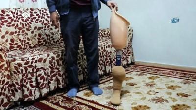 Ölen eşinin protez bacağını bağışlayacak ihtiyaç sahibi arıyor