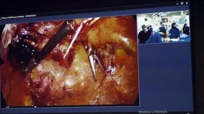 Yozgat'ta ilk kez interaktif katılımla kasık fıtığı ameliyatı yapıldı