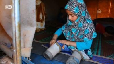 Suriyeli Maya yıllarca konserve kutusundan protezle yürüdü