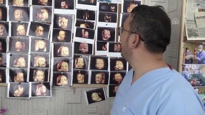 Ultrason fotoğraflarından koleksiyon yaptı - KAYSERİ