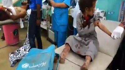 - Yemen'de Arap Koalisyonu'ndan Hava Saldırısı: 39 Ölü