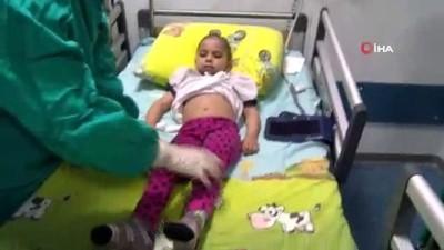 kiz cocugu -  Afgan çocuğa Malatya'da ilik nakli