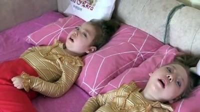 Hasta ikizlerin ailesi yardım bekliyor - KASTAMONU