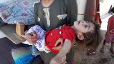 Dramı yürek burkan Aycan ve ailesi yardım bekliyor
