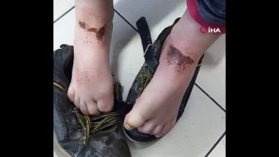 - Okul bahçesinde oynayan öğrencilerin vücutlarında oluşan çürük ve yanıklar sağlık kuruluşları ile Belediyeyi harekete geçirdi