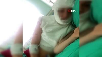 genc kiz -  Ümraniye'de üvey anne dehşeti...Kızının başından aşağı kaynar su döktü