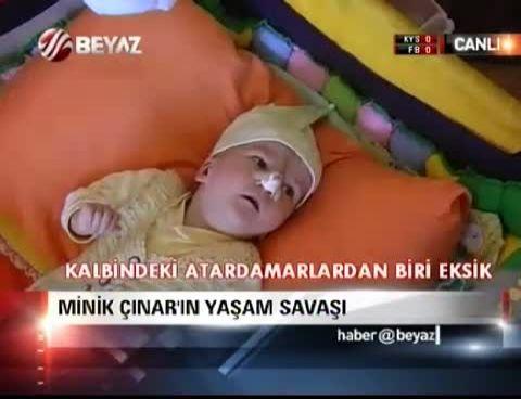 cinar efe - Minik Çınar'ın yaşam savaşı