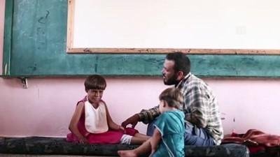 agri kesici - Pemfigus hastası 11 yaşındaki Meryem acil yardım bekliyor - İDLİB