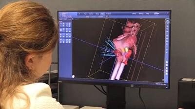 saglik hizmeti - BURSA - Robotik radyocerrahi cihazı 'Uzay Neşteri' kanser tedavisinde etkin rol üstleniyor