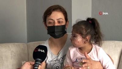 Bir annenin çaresizliği... 9 yaşında 27 ameliyat olan mikrosefali hastası kızı için doktor arıyor